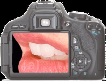 Fotografia estetica dental Barcelona - Docmedia