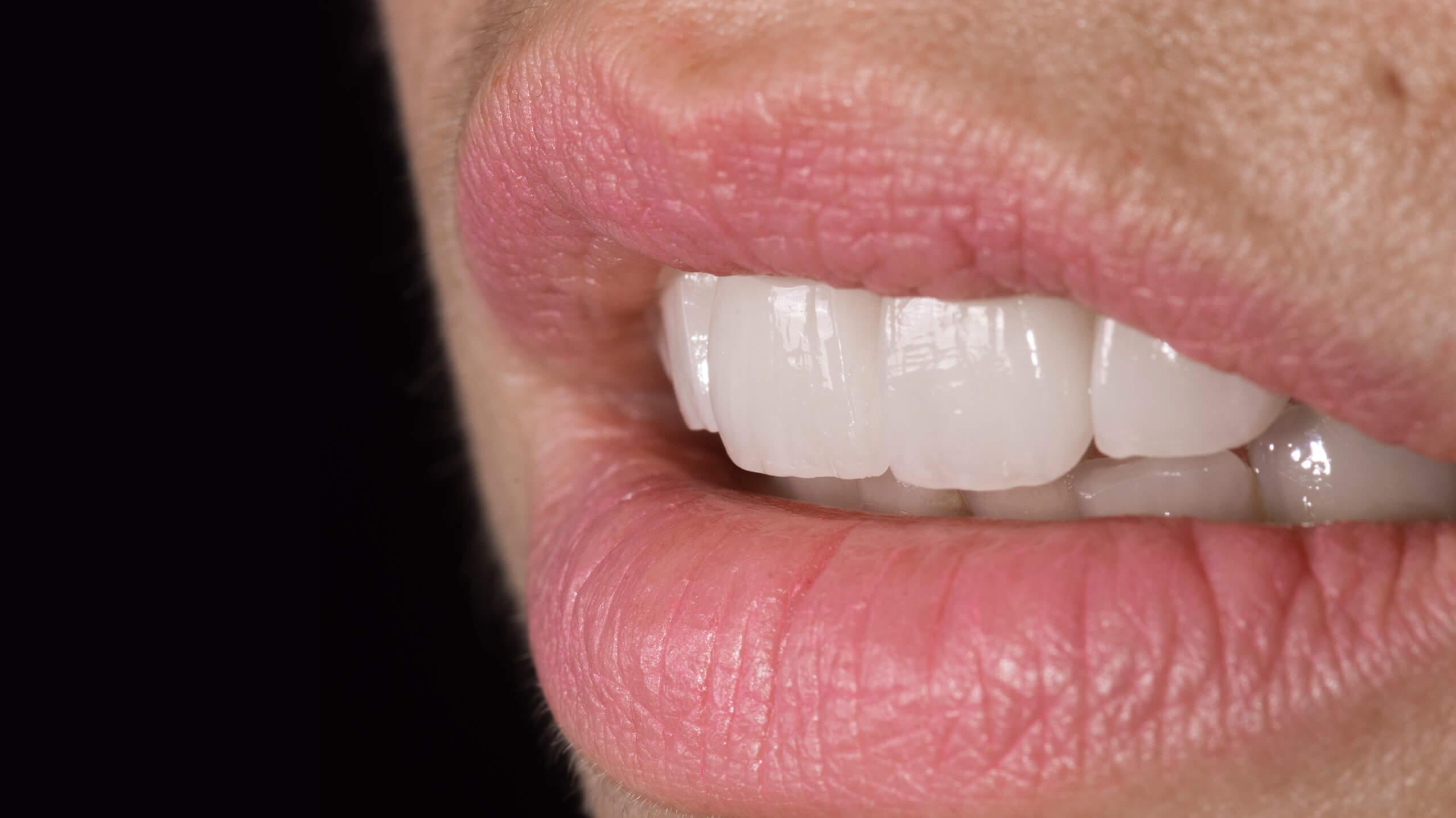 fotografía-dental-agencia-marketing-docmedia